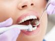 Akut tandlæge København